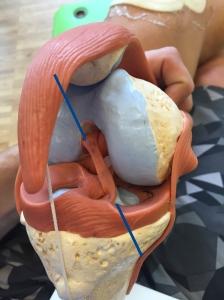 och såhär har man tydligen kört en borr rak genom både underben och lårben för att fästa in det nya korsbandet... mycket intressant! Konstigt det gör ont! :)